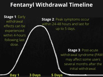 Fentanyl withdrawal timeline